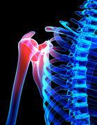 Shoulder painful skeleton x-ray, 3D illustration. - stock illustration