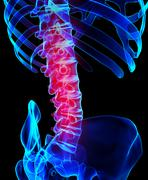 Spine painful skeleton x-ray, 3D illustration. Piirros
