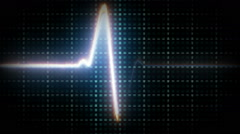Sinus Heart Rhythm On Electrocardiogram Record Paper Showing Normal P Wave, PR Stock Footage