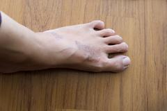 rash eczema on woman skin foot - stock photo