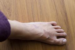 Rash eczema on woman skin foot Stock Photos