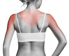 Sunburn female shoulder Stock Photos