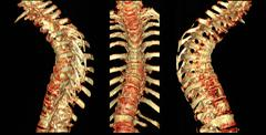 CT scan of thoracic spine with osteoporosis Stock Photos