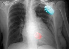 CXR, Starr-Edwards silastic ball heart valve Stock Photos