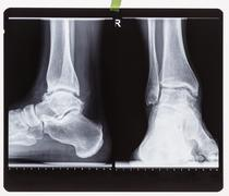 X-ray of the right foot ankle joint Stock Photos