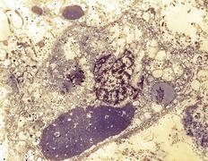 Ebola virus in a specimen of human liver tissue Kuvituskuvat