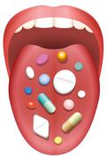 Pills Patient Tongue Mouth Consumption - stock illustration