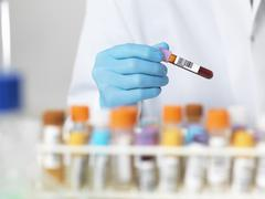 Close up of scientists hands selecting a blood sample for medical testing Kuvituskuvat