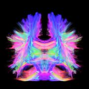 Full brain tractography with artistic color. This is a full brain tracking - stock photo
