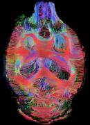 Coronal view of rat brain connectivity. Top view. Images reconstructed at 300 - stock photo