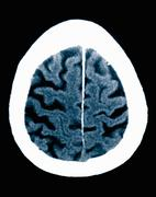 CT scan 84 year old male with Alzheimer's disease.  CT shows brain atrophy with Stock Photos
