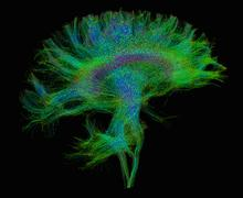 Diffusion MRI, also referred to as diffusion tensor imaging or DTI, of the human Kuvituskuvat
