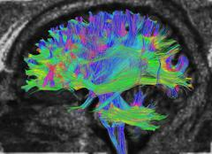 Diffusion MRI, also referred to as diffusion tensor imaging or DTI, of the human Stock Photos
