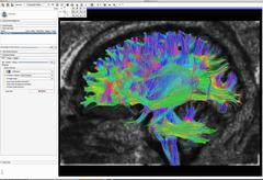 Diffusion MRI, also referred to as diffusion tensor imaging or DTI, of the human Stock Illustration