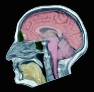 Brain MRI of adult male, normal structures Stock Photos