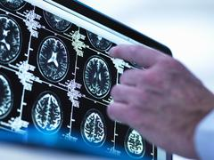 Doctor viewing a series of MRI (Magnetic Resonance Imaging) brain scans on a Stock Photos