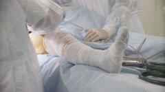 Patient's leg during hip surgery, doctors operate on a patient Stock Footage