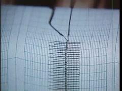 Closeup of  EKG test output, 1970s Stock Footage