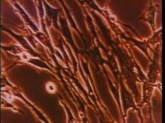 Closeup of human blood cells Stock Footage