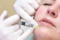Anti-age injection therapy. Mimic wrinkles reduction. - stock photo