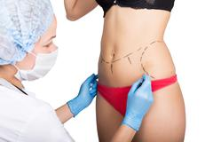Female doctor makes dotted line on female body for cellulite correction - stock photo