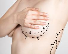 doctor makes dotted line on female body for cellulite correction. cosmetic - stock photo