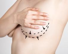 Doctor makes dotted line on female body for cellulite correction. cosmetic Kuvituskuvat