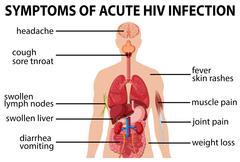 Chart of symtoms of acute HIV infection Stock Illustration