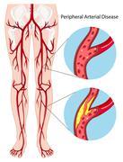 Peripheral arterial disease diagram Stock Illustration