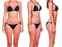 Woman's body with sunburn Stock Photos