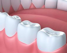 3D illustration of lower gum and teeth. - stock illustration
