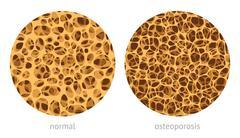 Bone spongy structure - stock illustration