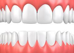 3D illustration teeth and gum model. - stock illustration