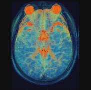 Cranial MRI Stock Footage