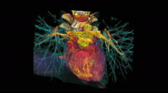 Heart, Enhanced CT Scan - stock footage