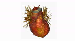 Beating Heart, CT Scan Stock Footage