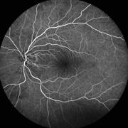 Fluorescein Angiogram - stock footage