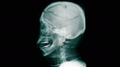Skull x-ray of a man who shot himself in the head. Stock Footage