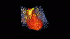 3D CT scan of a beating human heart Stock Footage