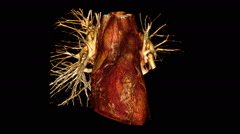 3D reconstruction of a CT scan of a beating human heart Stock Footage
