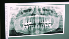 Tooth implant on X-ray picture Stock Footage