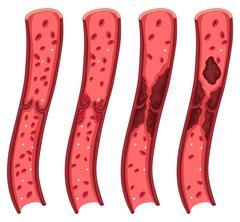 Blood clot diagram on white Stock Illustration