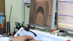 Display shows procedure at Leksell Gamma Knife Perfexion Stock Footage