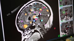 Image with brain tumors 3D modeling on the computer monitor Stock Footage