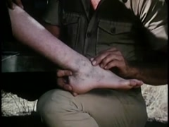 Medium shot of man examining broken ankle, 1970s - stock footage