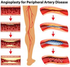 Diagram showing angioplasty for peripheral artery disease Stock Illustration
