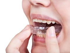 Girl fixes aligner for orthodontic correction Stock Photos
