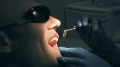 Middle aged man gets dental mouth teeth treatment Stock Footage