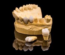 Dental prosthesis Stock Photos