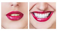 Whitening before and after - stock photo
